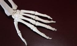Чай, Плотность костей и остеопороз